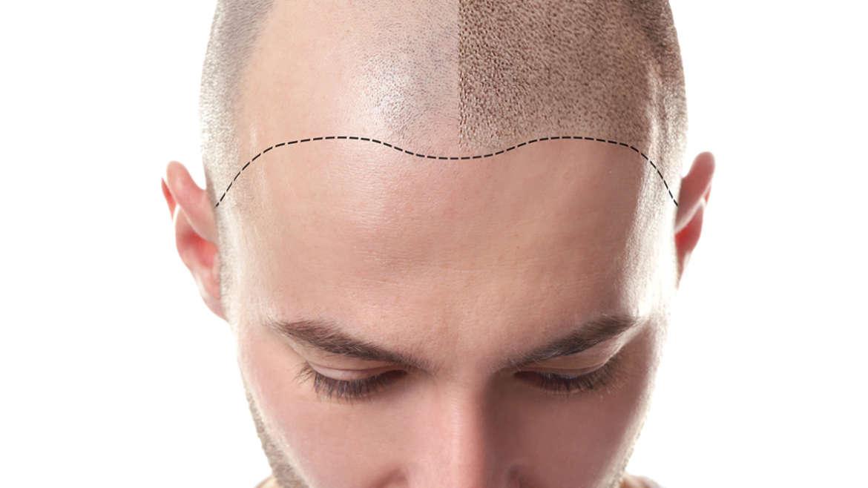 Hair&Scalp