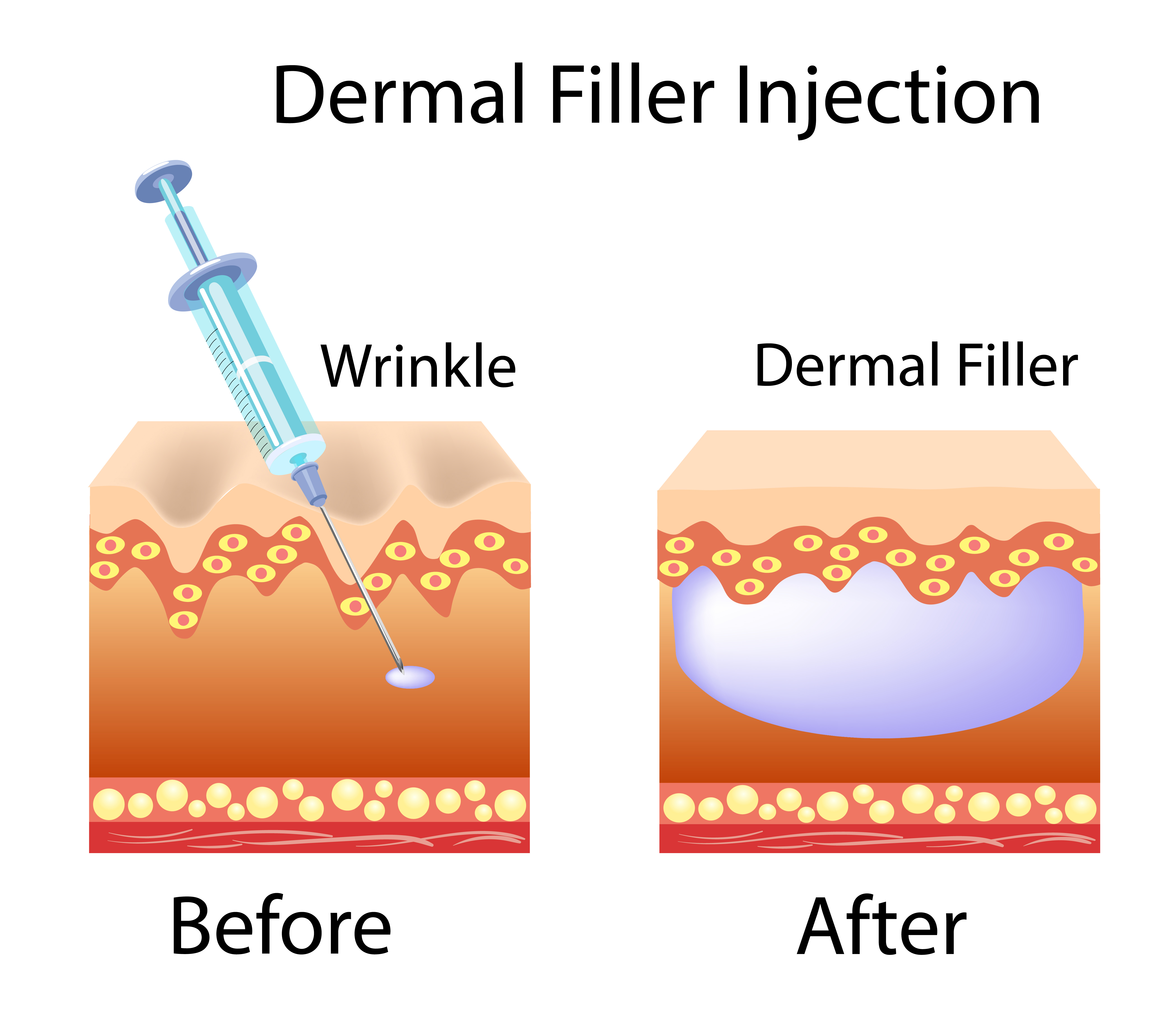 Dermal Fillers – Facial Secrets